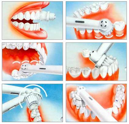 Отбеливание зубов паста ополаскиватель