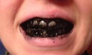 отбеливание зубов углем