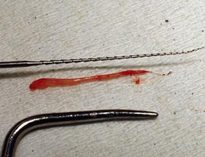 удаленная пульпа зуба