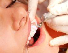 зубной камень: причины, лечение, профилактика