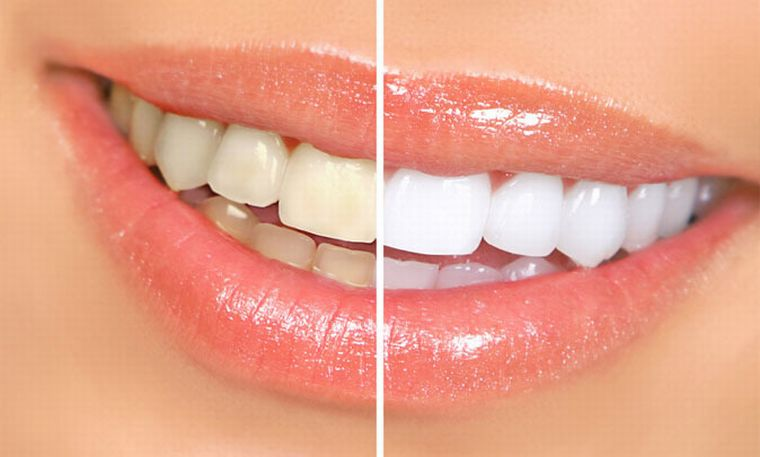 До и после УЗ чистки зубов