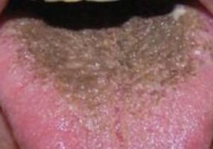 волосатый черный язык
