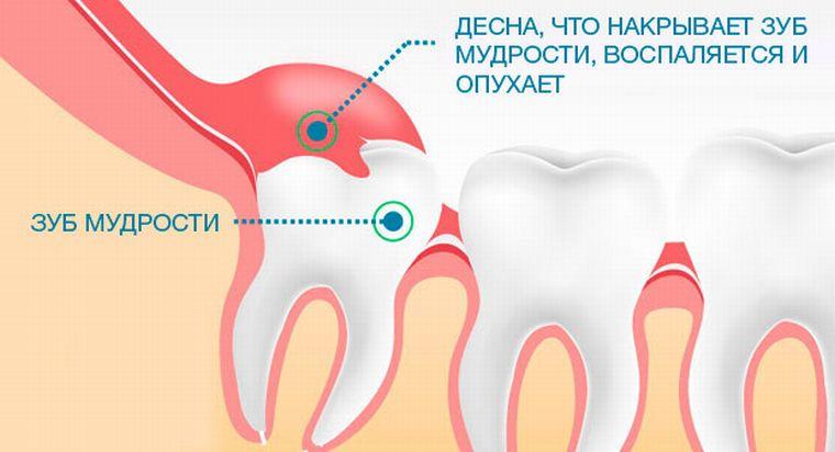 прорезание зуба мудрости