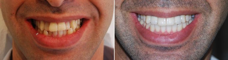виниры для зубов perfect smile veneers москва