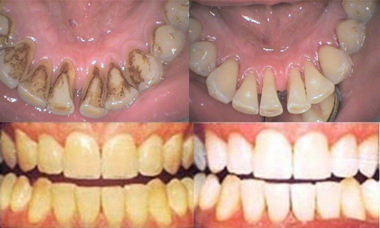 зубы до и после применения Air Flow