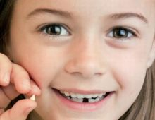 зуб молочный