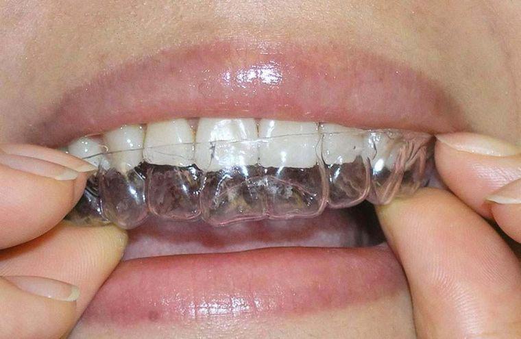 Как вставить пластину для коррекции в рот