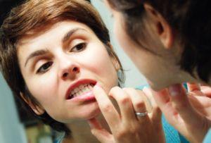 при чистке зубов десна кровоточат