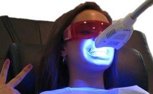 аппаратные методики отбеливания зубов