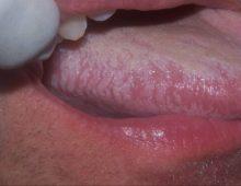 лейкоплакия полости рта