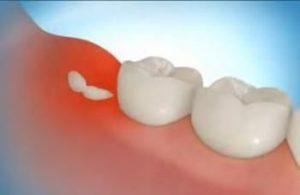 зуб и десна