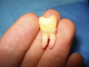 зуб на лодони