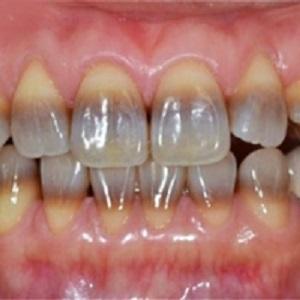 зубный камень