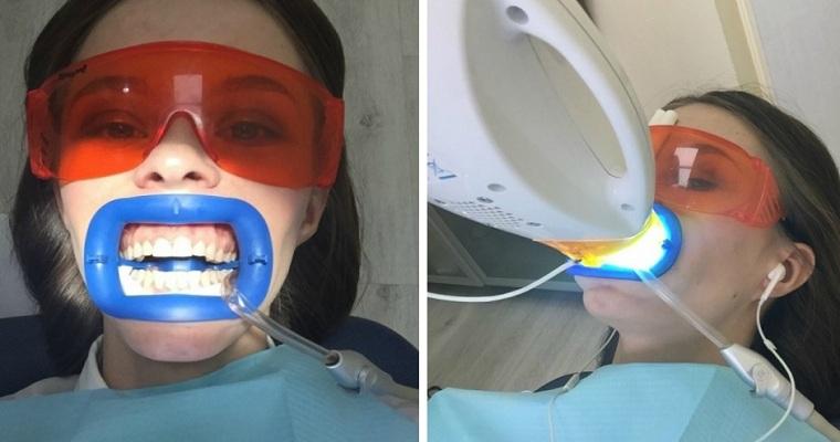 отбелить зуба зум3