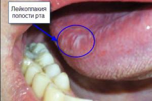 во рту лейкоплакия