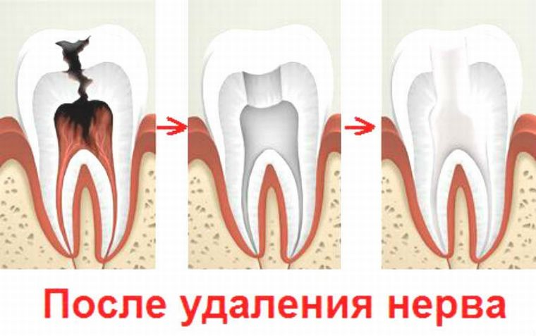 После удаления нерва зубного