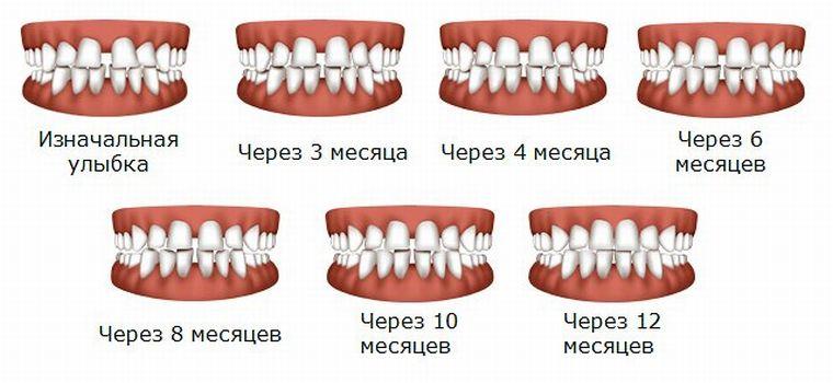 Процесс исправления зубов