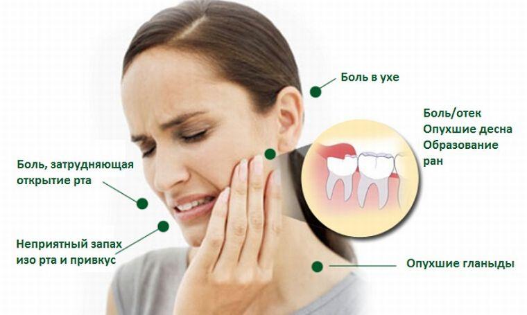 Симптомы при прорезании зуба мудрости