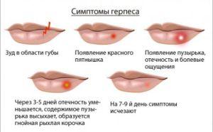 Болячка на губі але не герпес фото