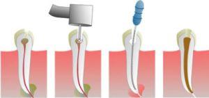 удаление нерва зубного