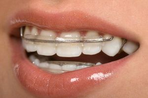 как установить пластинку на зубы