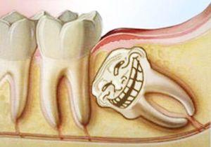 зуб режется