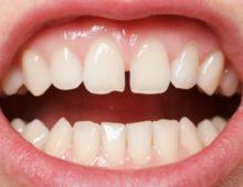 щель между зубов