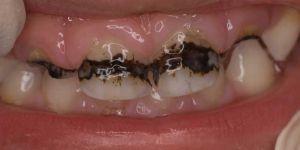 потемнели зубы