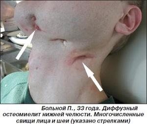 диффузный остеомиелит