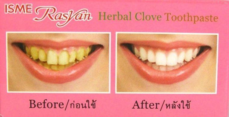 До и после использования пасты для зубов