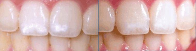 До и после фторирования
