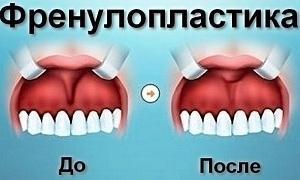 френулопластика