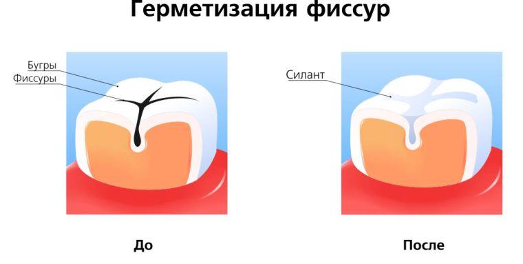 до и после запечатывание фиссру