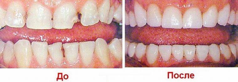 До и после установки протезов