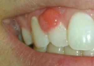 Какие врачи лечат зубы