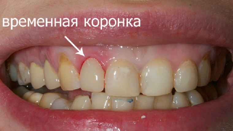 пластмассовые коронки на передние зубы