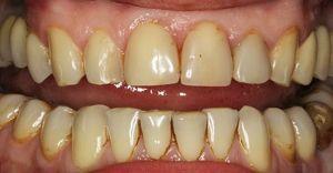 зубы желтеют от курения