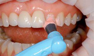 очистка зубов