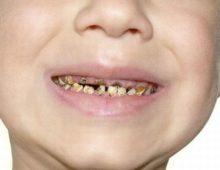 гной в зубе
