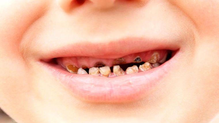гной в зубах
