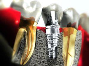 Установка зубных имплантов