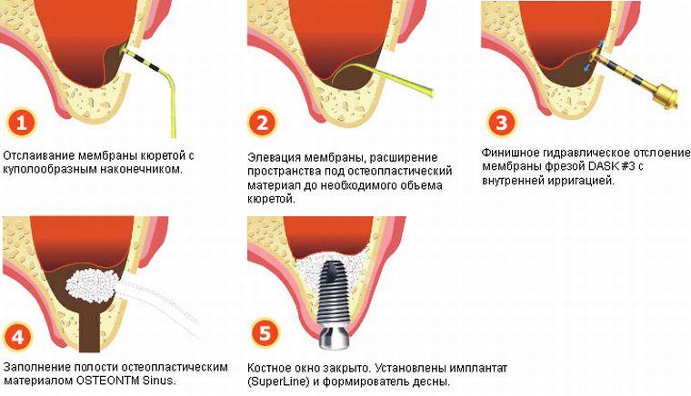 этапы остеопластики