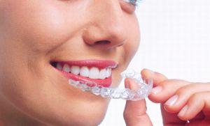 Щелкает челюсть при открытии рта что делать