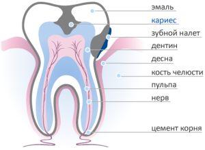разрушение зуба кариесом
