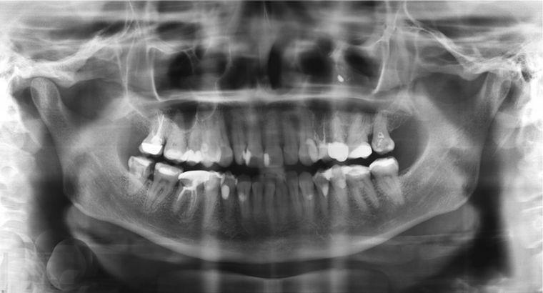 3d снимок зуба