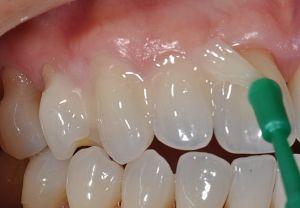 нанесение лака на зубы