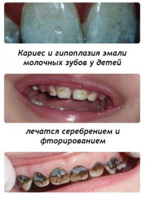 разрушение зубной эмали у детей