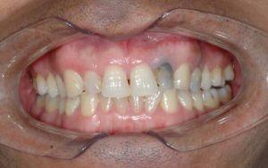 мертвый зуб