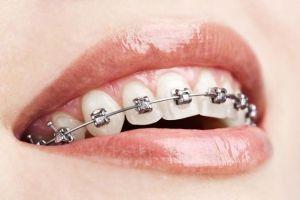 железные конструкции на зубах
