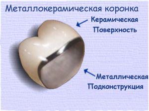 коронка из металокерамики